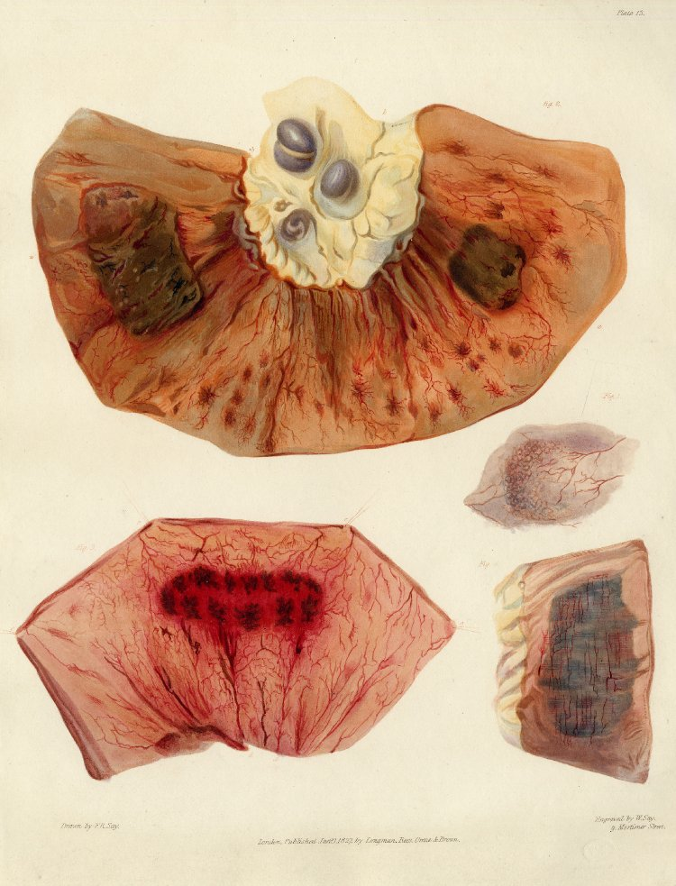 Plates of morbid anatomy by Dr. Bright